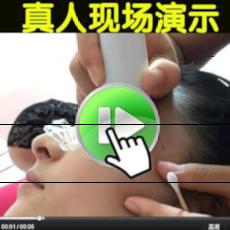 激光点大痣笔祛斑笔德国小白扫斑机点斑笔去斑笔美容仪器家用脸部