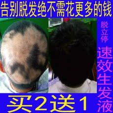止脱防脱育发生发液控油去屑止痒护发脂溢性脱发增发密发产后掉发