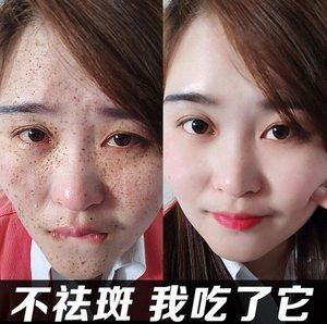 雀斑祛斑霜神器美白产品女分解黑色素淡化色斑脸部草本套装淡斑霜